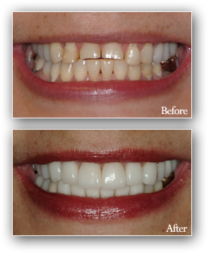 Dental smile design